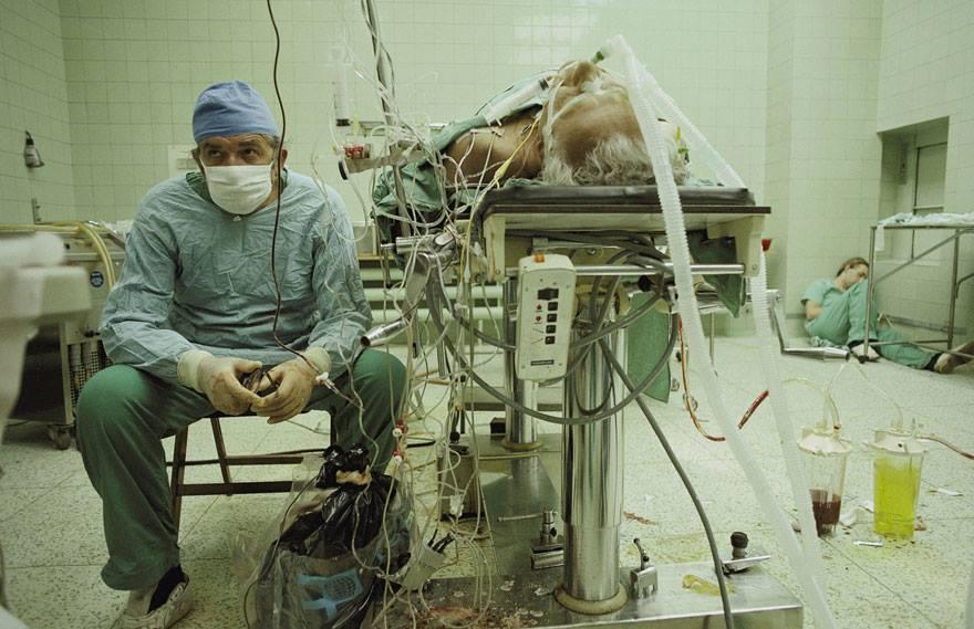 A Operação de Transplante de Coração Bem-sucedida que Durou 23 Horas