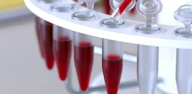 Exame de sangue detecta até 86% de casos de câncer de ovário precocemente