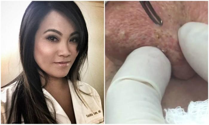 Dermatologista faz sucesso na internet espremendo cravos e espinhas
